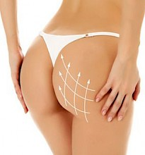 Hyaluronic Acid Body Sculpting